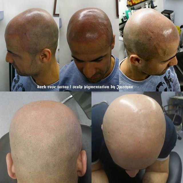 Dark Rose Tattoo scalp pigmentation. Affordable hair loss treatment, performed by our excellent artist Justyna. For more visit darkrosetattoo.co.uk #scalpmicropigmentation #hairfix #cosmetictattoo #permanentmakeup #makeupart #pigmentation #scalpaesthetics #pigmentacja #pigmentacjamedyczna #skinclinic #pigmentacjaglowy #pigmentacjagłowy #tatuażkosmetyczny #tatuaż