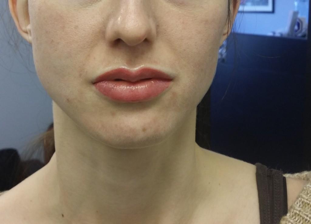 dermal pigmentation  lips by Justyna Kurzelowska