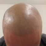 scalp micropigmentation by Justyna Kurzelowska darkrose