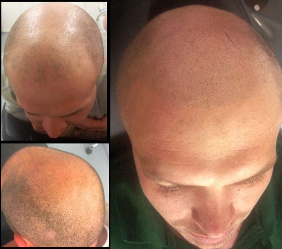 scalp micropigmentation by Justyna Kurzelowska