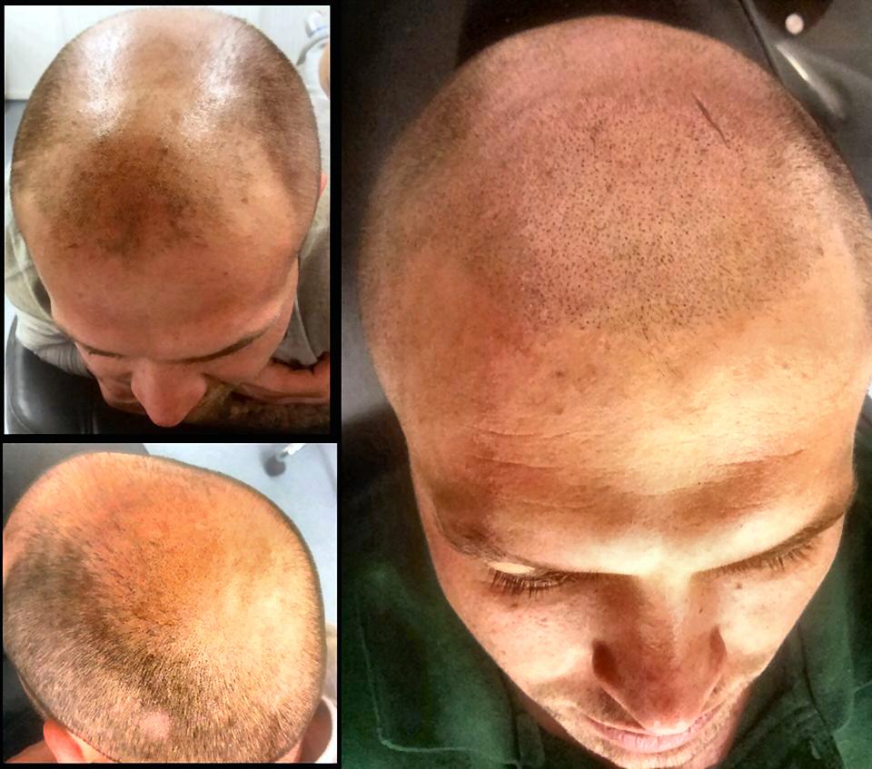 scalp-micropigmentation-by-Justyna-Kurzelowska