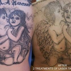 Laser tattoo removal by Marek. Back piece faded out in 2 sessions. Soon will be covered :) #tattaway #darkrosetattoo #marekkurzelowski #laseroweusuwanietatuazu