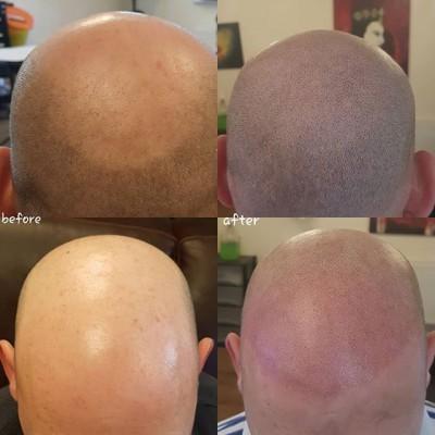 Today's work scalp micropigmentation by #JustynaKurzelowska @darkrosetattoo