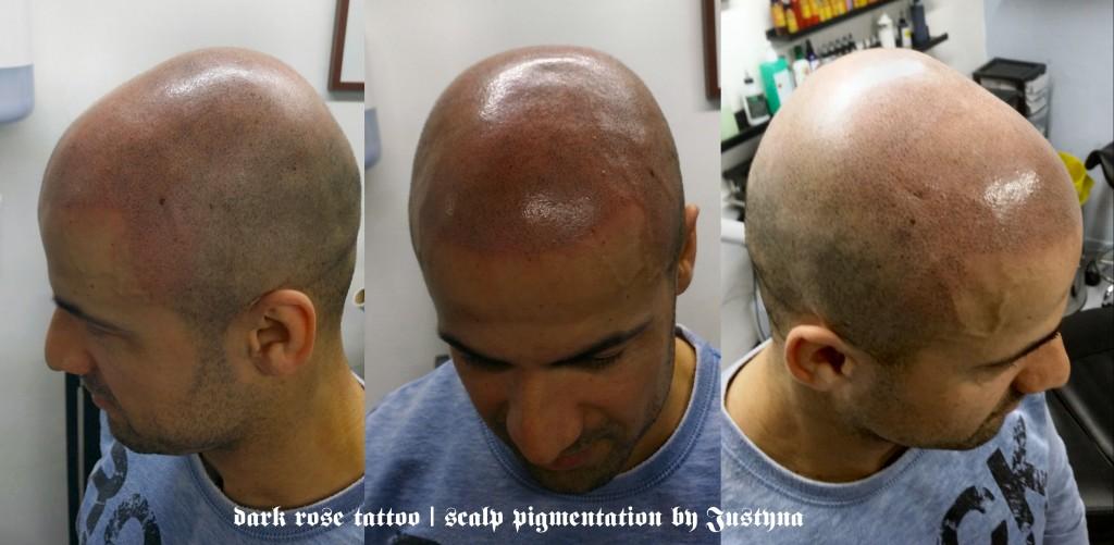 dark rose tattoo cosmetic scalp pigmentation by Justyna Kurzelowska