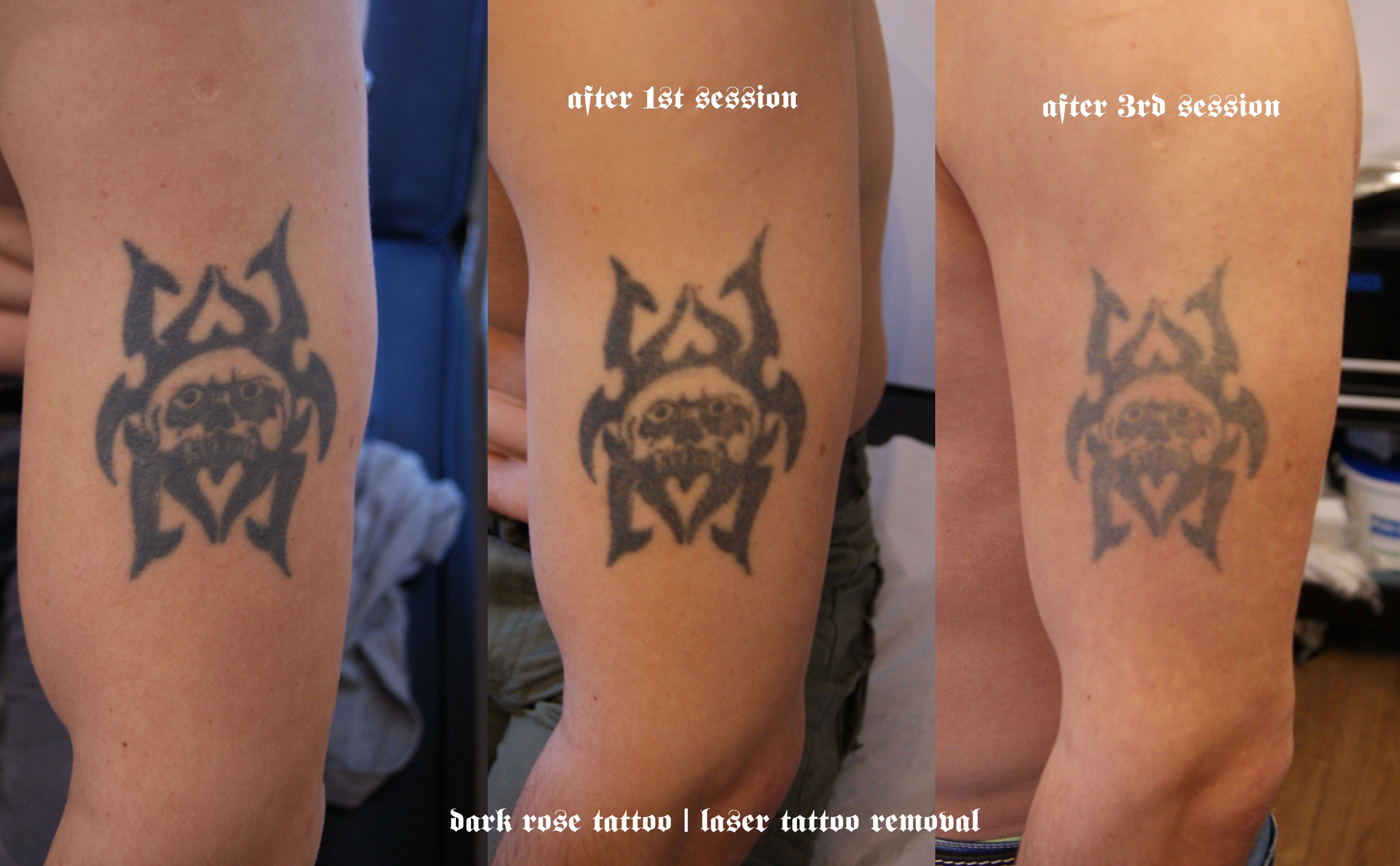 Tattoo and pmu removal with laser dark rose tattoo for How long is a tattoo removal session