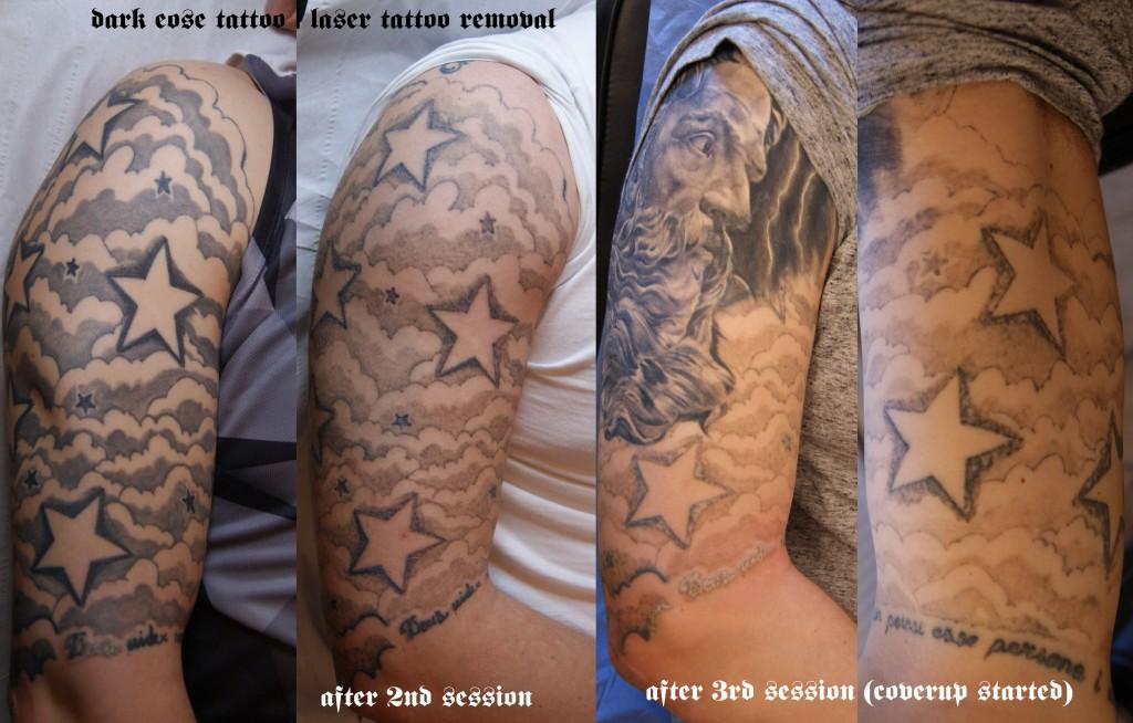 dark rose tattoo laser removal piece664