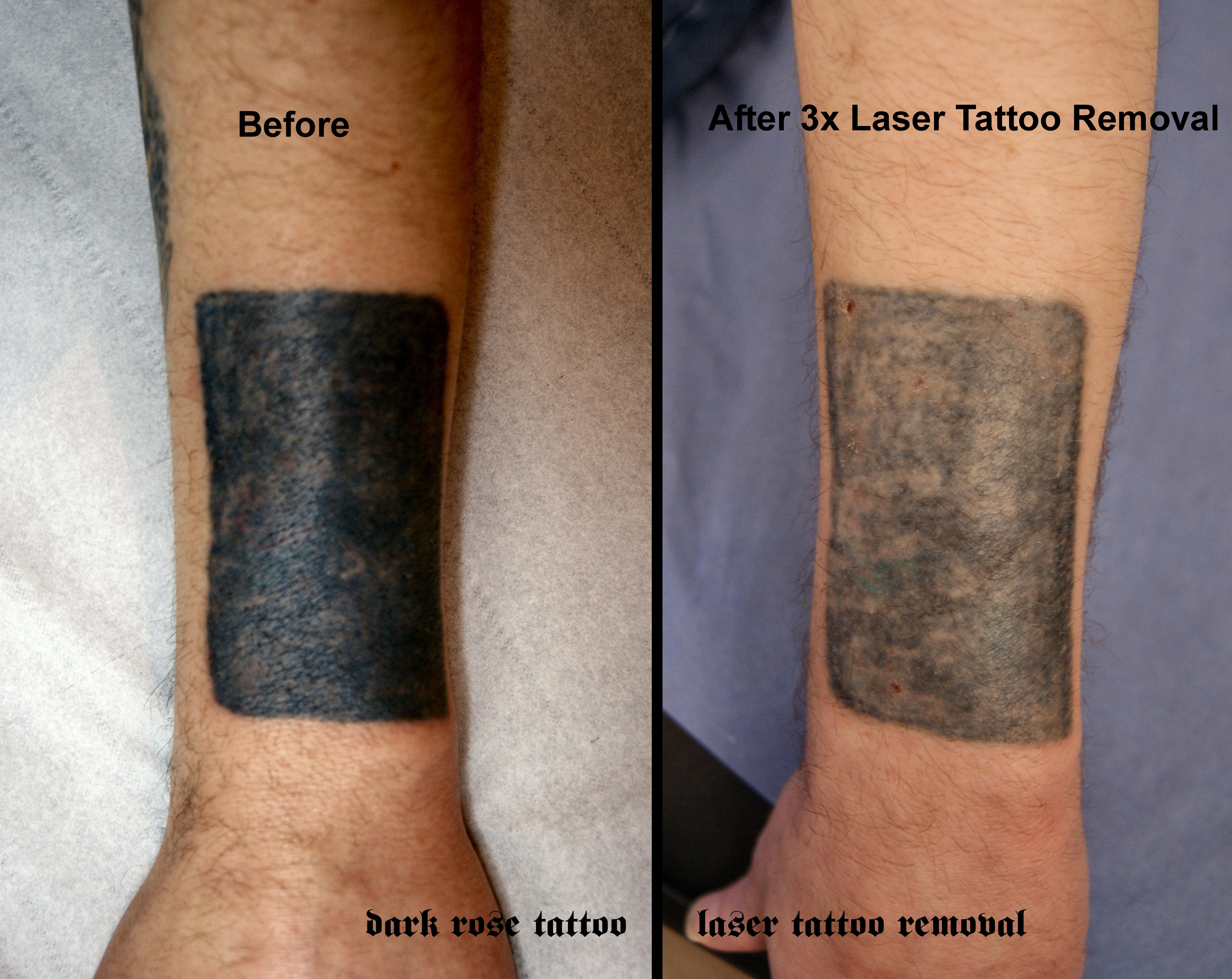 Tattoo And Pmu Removal With Laser Dark Rose Tattoo