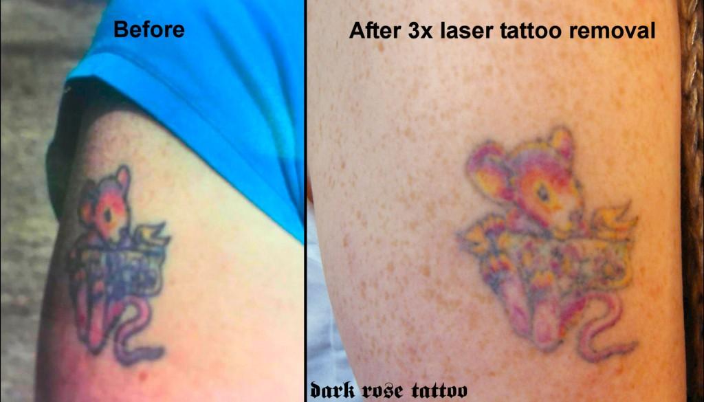 dark rose tattoo laser tattoo removal piece no76 by Marek