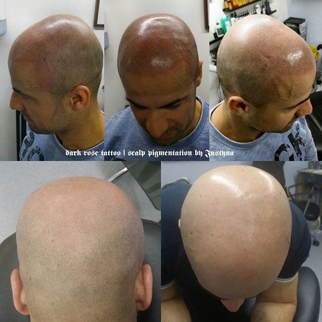 Dark Rose Tattoo scalp pigmentation. Affordable hair loss treatment, performed by our excellent artist Justyna. For more visit darkrosetattoo.co.uk #scalpmicropigmentation #hairfix #cosmetictattoo #permanentmakeup #makeupart #pigmentation #scalpaesthetics #pigmentacja #pigmentacjamedyczna #skinclinic #pigmentacjaglowy #pigmentacjagłowy #tatuażkosmetyczny #tatuaż