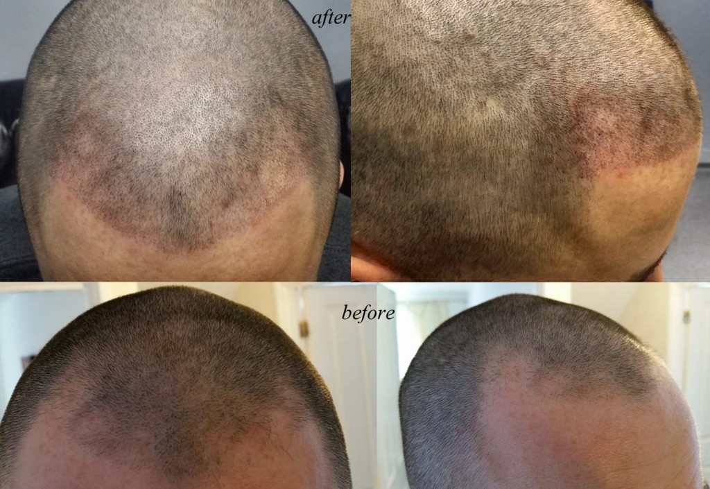 micropigmentation hair fix