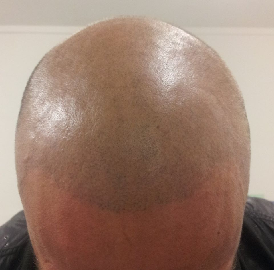 scalp micropigmentation by Justyna Kurzelowska darkrose