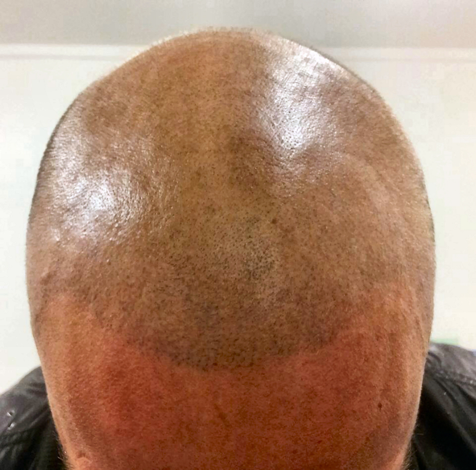 scalp-micropigmentation-by-Justyna-Kurzelowska-darkrose