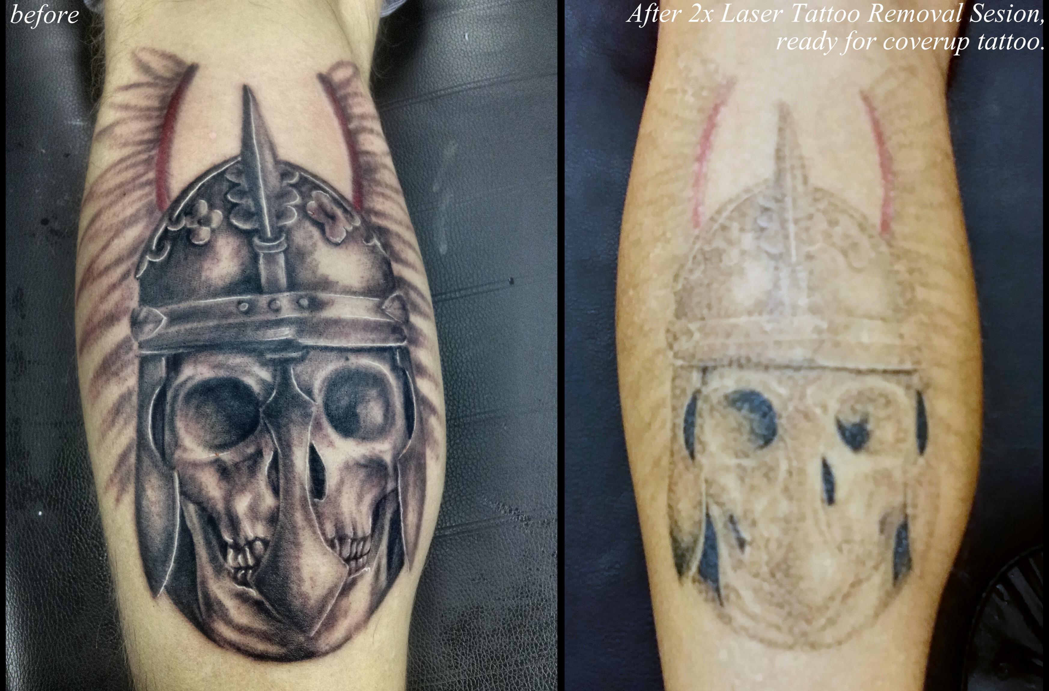 Tattoo and PMU removal with laser. | Dark Rose Tattoo