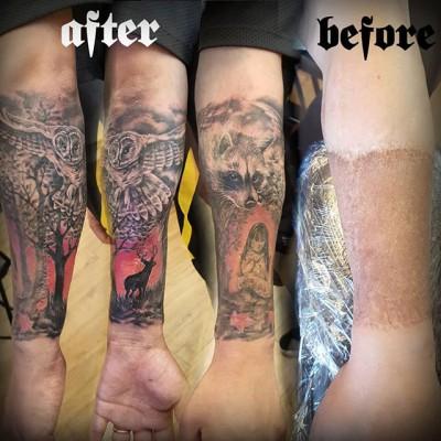 Skin graft and scars cover-up tattoo by #JustynaKurzelowska @darkrosetattoo #scarscoveruptattoo