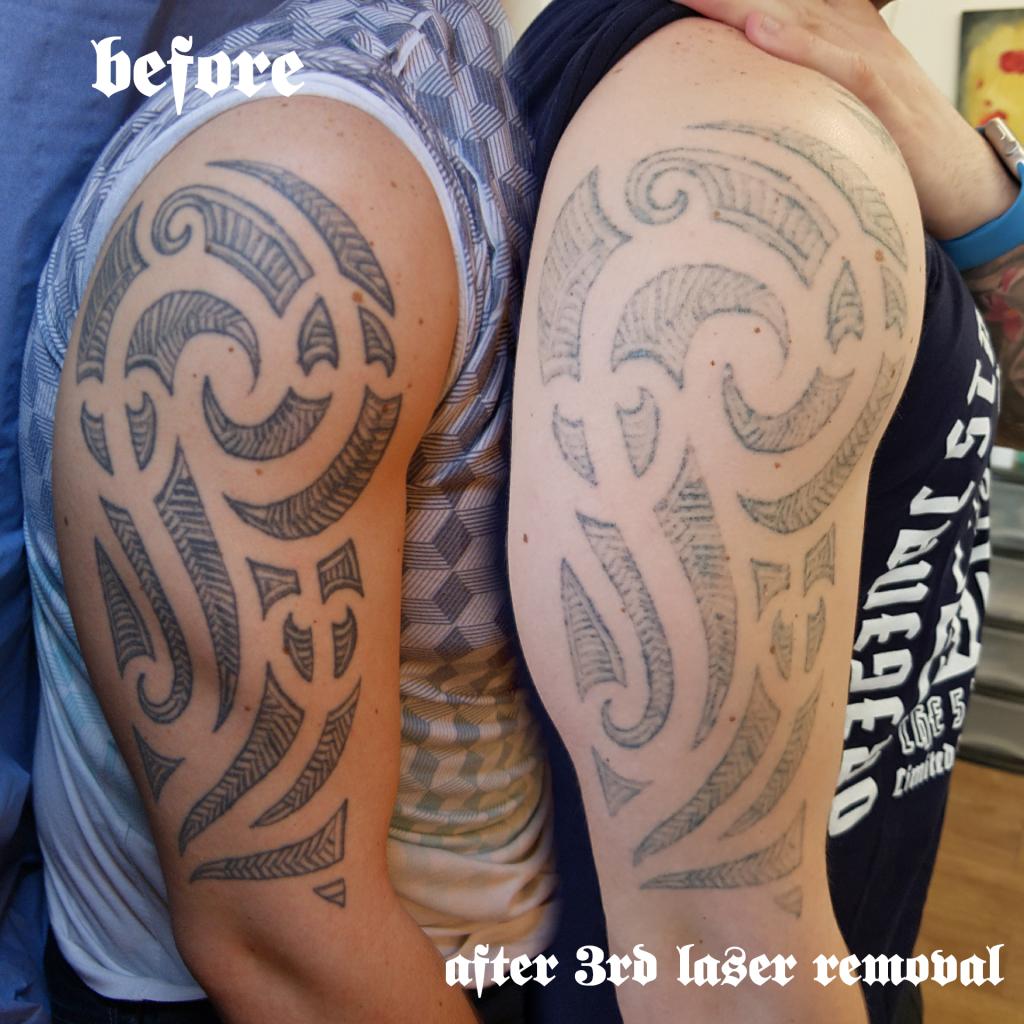 dark rose tattoo laser removal by marek kurzelowski