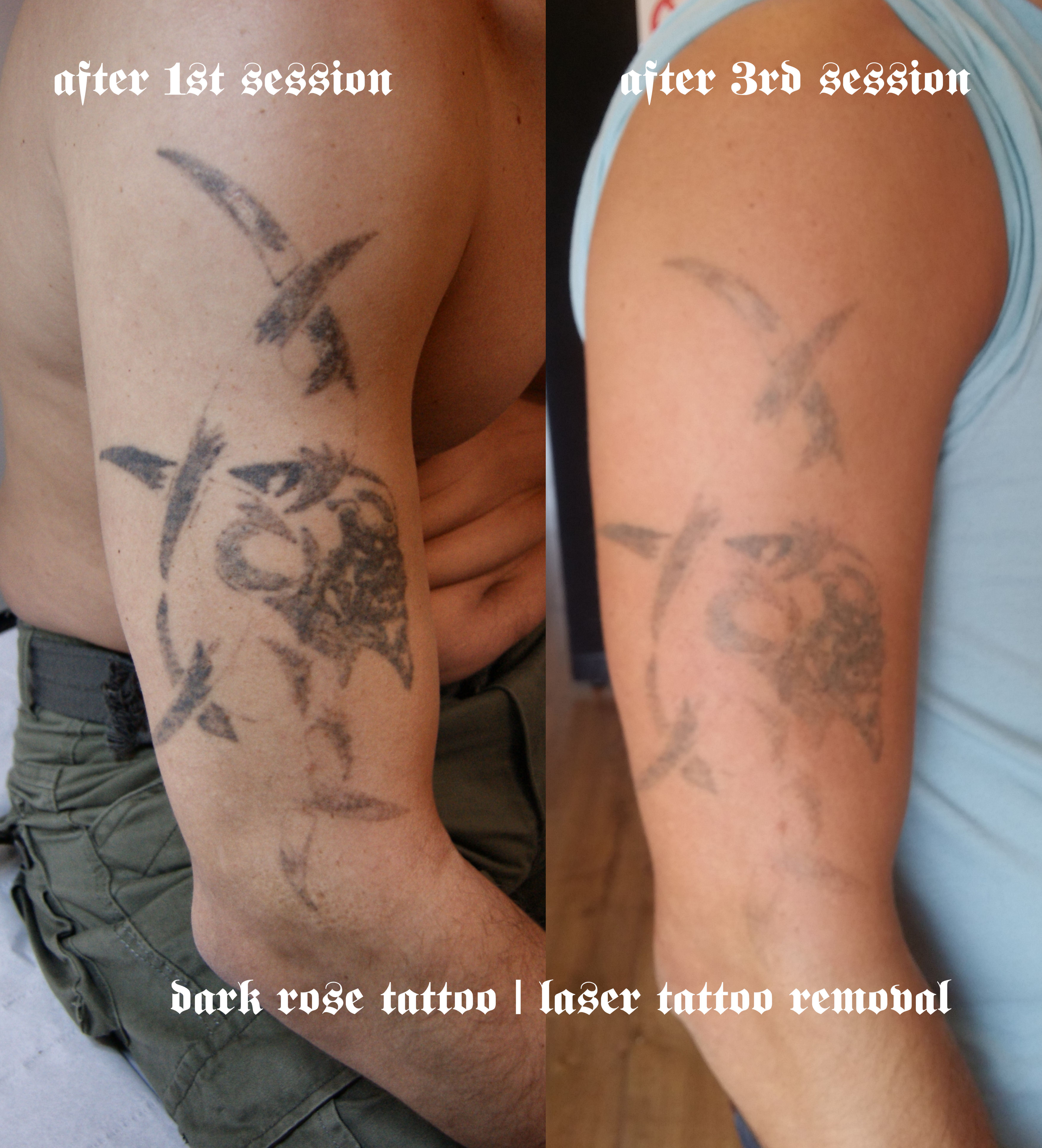 Tattoo and Permanent make-up removal with laser. | Dark Rose Tattoo